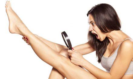 ¿Cómo funciona la depilación con láser?