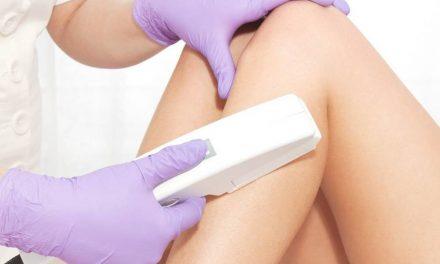Depilación de las piernas con láser
