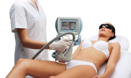Posibles complicaciones en la depilación láser