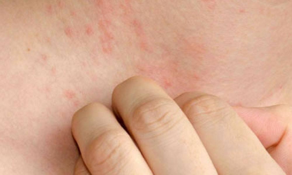 ¿Cuáles son los efectos secundarios de la depilación con láser?
