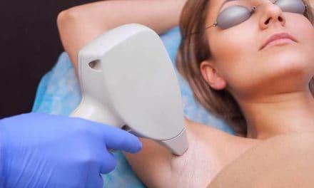 ¿Por qué es mejor el tratamiento con láser para la depilación?